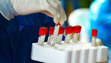 Photo of MINSAL toma muestras para detectar coronavirus en Jujutla, Ahuachapán